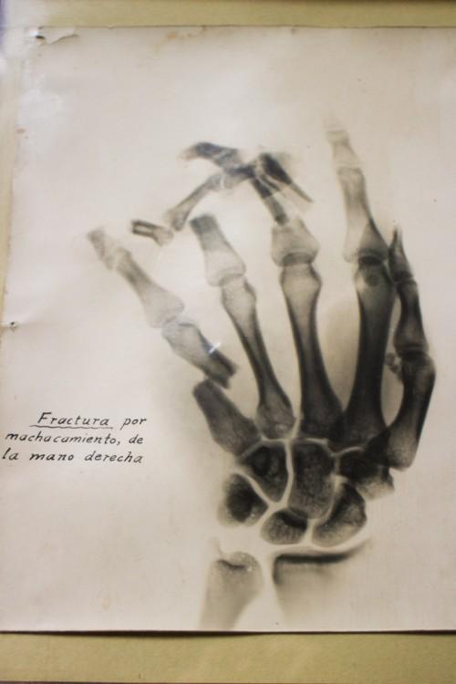 X-ray Dos Estrella Mine